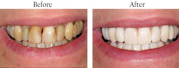 Mt. Kisco Before and After Dental Implants