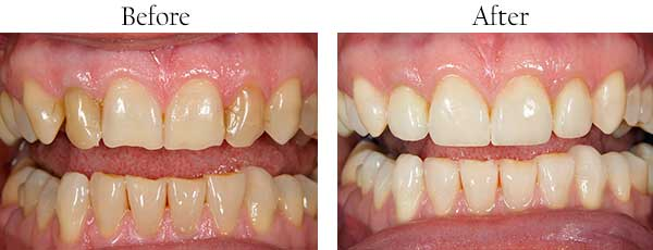 Katonah Before and After Teeth Whitening